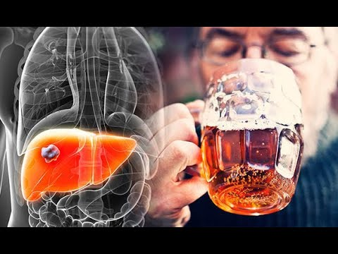 Anatomy and Physiology of Alcohol Effects Dangers