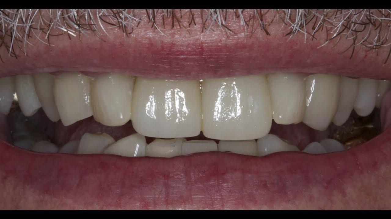 cuanto cuesta un implante dental en guayaquil ecuador