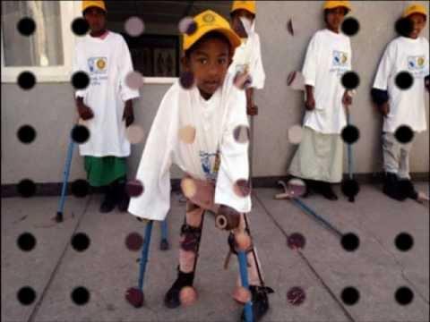 polio disease youtube
