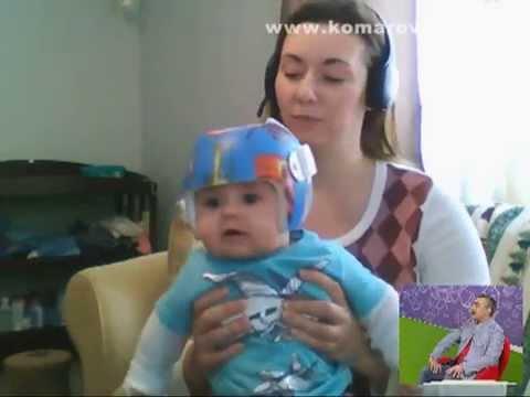 Как врачи в США выравнивают деткам голову шлемом? - Доктор Комаровский