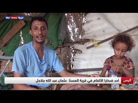 الألغام الحوثية تقتل عشرات المدنيين في الحديدة