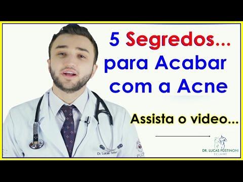 Dr.Lucas Fustinoni- 5 Dicas para Tratar a Acne E Acabar Espinhas Naturalmente