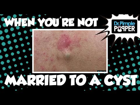 When you're not married to your Cyst...