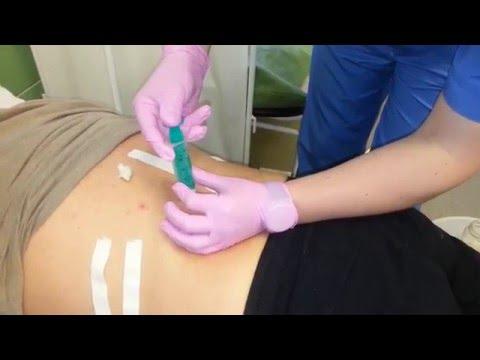 Лечение поясничного радикулита медикаментами: уколы, мази