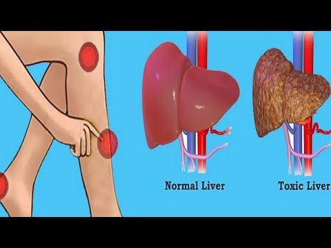 These 6 Warning Signs Show That Your Liver is Full of Toxins | My Healthy Life