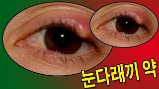 눈다래끼 약