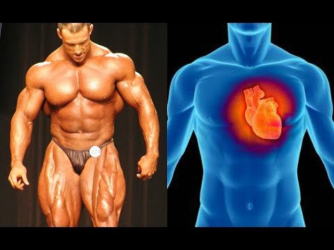 10 Bodybuilders who Died of Heart Attacks before 50