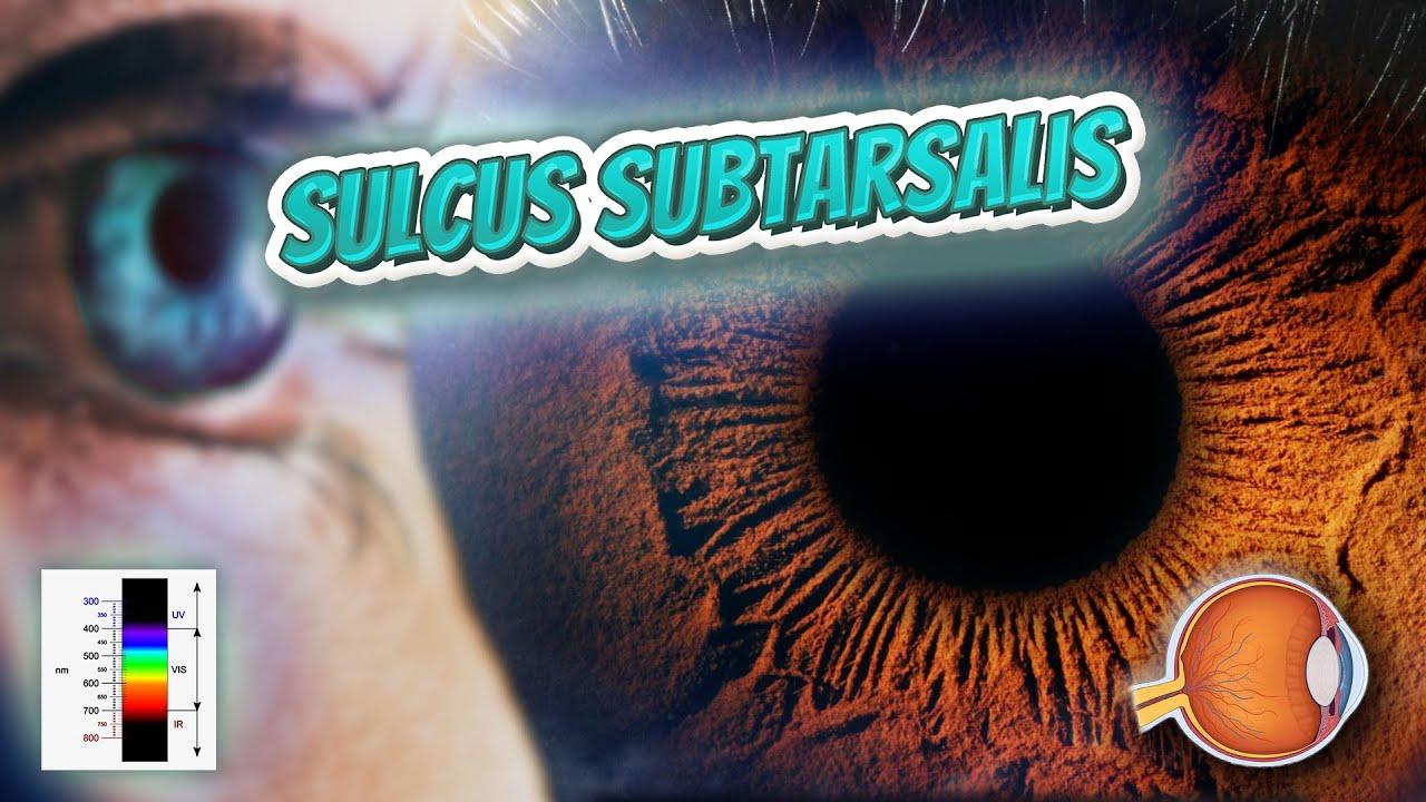 Sulcus subtarsalis your eyeballs youtube sulcus subtarsalis your eyeballs ccuart Choice Image