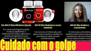 hairloss blocker  funciona?hairloss blocker funciona mesmo hairloss blocker