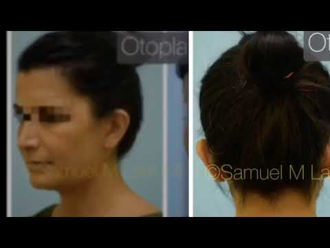 Dallas Otoplasty Before and After