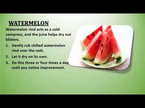 How To Cure Poison Ivy -  Natural Cure For Poison Ivy