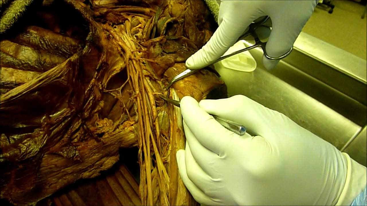 Upper Extremity Arteries - YouTube