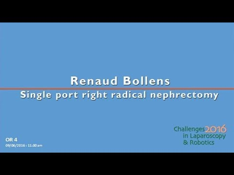 CILR 2016 - Renaud Bollens - Single port right radical nephrectomy