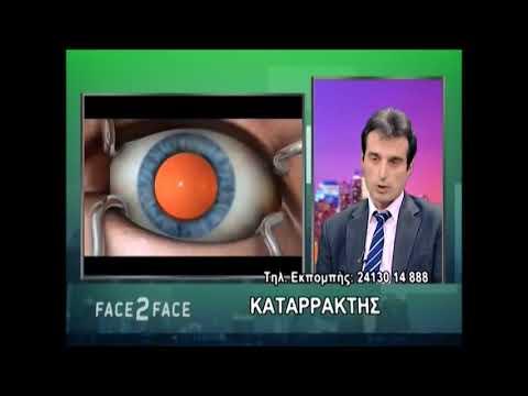 Πώς γίνεται η επέμβαση καταρράκτη - Αχιλλέας Μάνδαλος, Χειρουργός Οφθαλμίατρος