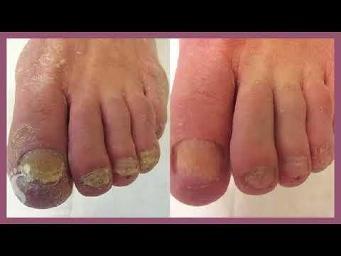 Мазь от грибка ногтей на ногах самая хорошая и недорогая тербинафин