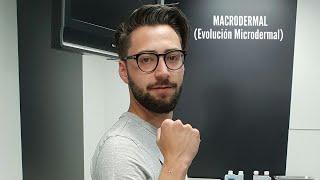 MACRODERMAL(EVOLUCIÓN MICRODERMAL) 💉💉😉🙂