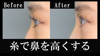 メッシュ状の溶ける糸で鼻を高くする整形【閲覧注意】【手術動画】