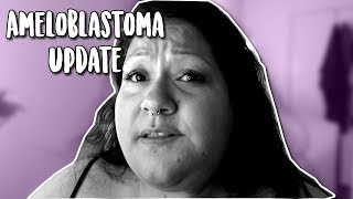 Video AMELOBLASTOMA (TUMOR) UPDATE; CHIT CHAT + PUTTING MY EYELASHES download MP3, 3GP, MP4, WEBM, AVI, FLV Agustus 2018