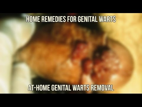 Home Remedies for Genital Warts - At-Home Genital Warts Removal