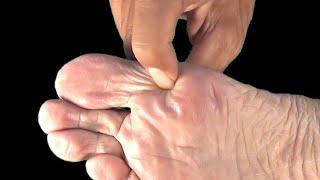 La vraie cause des douleurs aux pieds