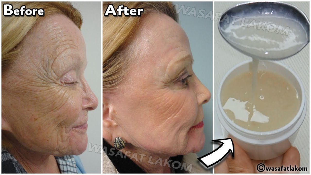 A component,stronger than Botox,apply it to wrinkles and they will disappear permanently and forever