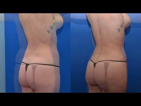 Before and After Precision LipoSCULPTing Liposuction and Fat Transfer in a Thin Patient