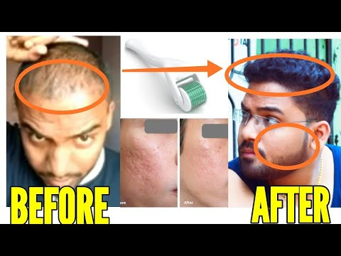 ये हुआ जब मैने सिर्फ 2 हफ्ते Derma roller यूज किया 😱| Derma roller for hair regrowth | how to use