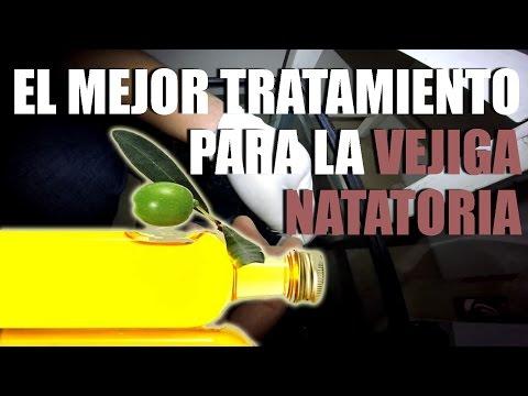 tratamiento obstrucci n intestinal gente betta mexico o