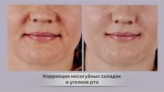 Коррекция носогубных складоки уголков рта препаратом содержащим гиалуроновую кислоту.