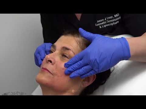 Facial Sculpting Surgery | Facial Sculpting | Radiesse Dermal Filler | Cosmetic Surgery | Dr. Emer