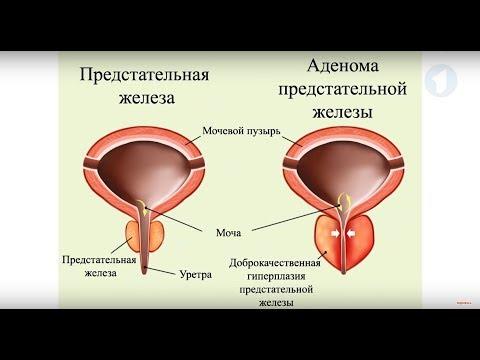 Роль простаты в организме мужчины / Здравствуйте