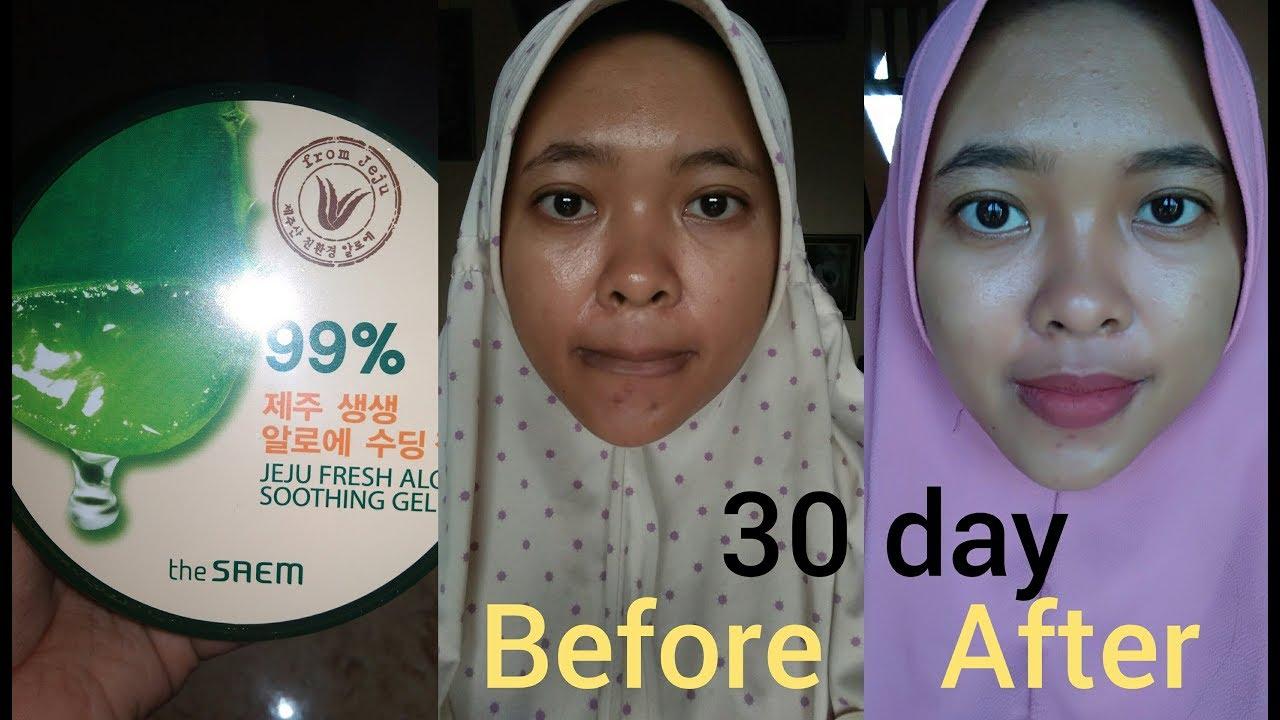 Manfaat Jeju Aloe The Face Shop Untuk Jerawat