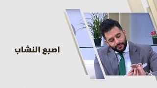 د. أحمد العموري  - اصبع النشاب