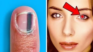 She Was Shocked To Find Out That A Black Line On Her Nail Is A Sign Of Serious Health Problems