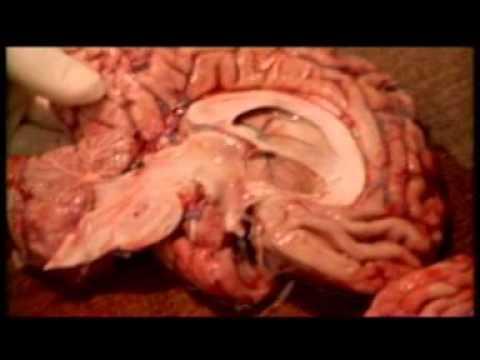 Şizofreni (Discovery Channel Belgeseli)