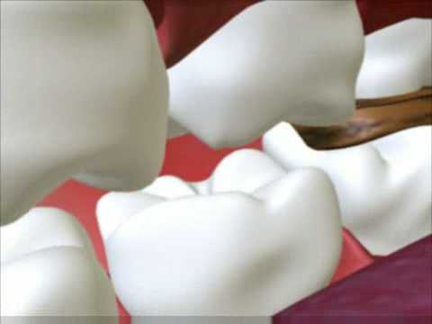 Dental Cavity - 3D Medical  Animation