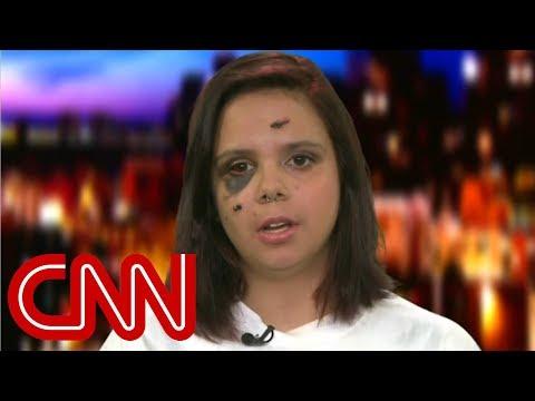 Survivor: Trump didn't express empathy in call