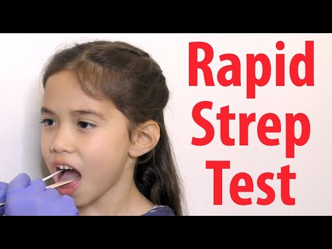 Rapid Strep Test: