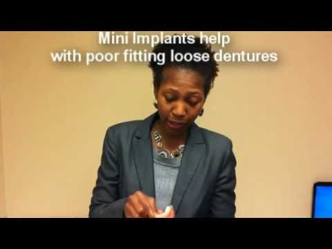 One Minute Dental Update Mini Implants