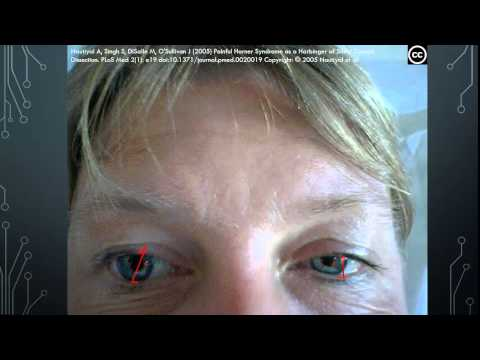 Neuro-ophthalmology: Horner Syndrome