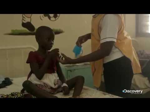 Малярия, лечение, причины, симптомы, профилактика.
