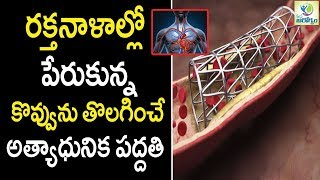 How This Device Safely Removes Blood Clots - Health Tips in Telugu || Mana Arogyam
