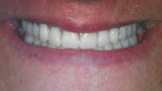 dentures austin tx lakeway before and after photos by dentures dentist dr patel