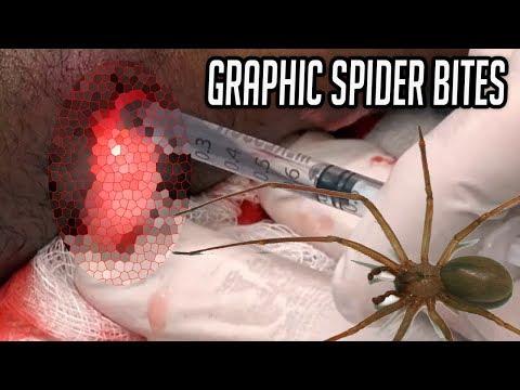 Brown Recluse Spider Bites!  Best Of Bad Spider Bites