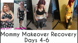 Download What to expect after a Mommy Makeover| Recovery