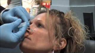 Botox® Cosmetic and Restylane® Lunch-Time Facelift in Toronto and Mississauga Thumbnail