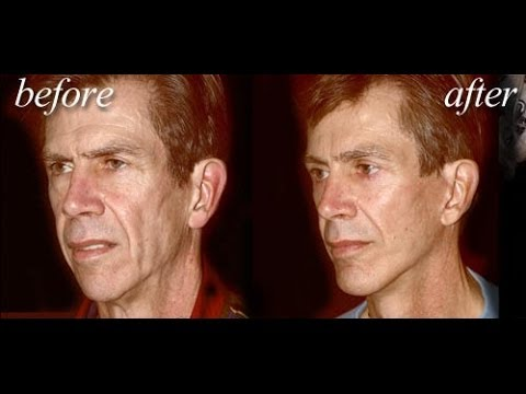 """Dr. Delgado discusses """"The Art of the Modern and Natural Male Facelift"""