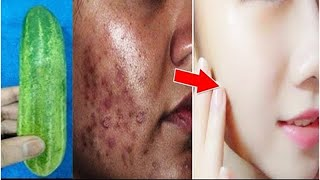 How To Remove Dark Spots, Dark Black patches, Hyper pigmentation । Get rid of uneven skintone