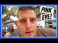 watch he video of GROSS PINK EYE!