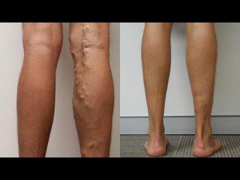 chirurgie cosmetică a varicelor